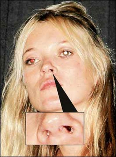 cocaine nose damage from snorting